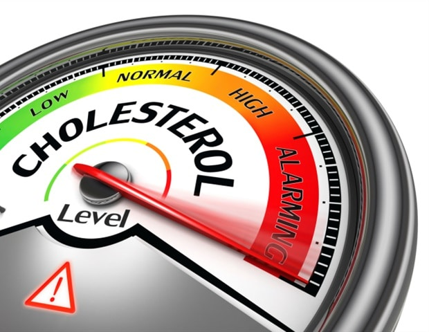 Study illuminates the link between cholesterol and Alzheimer's-associated toxic protein clumps
