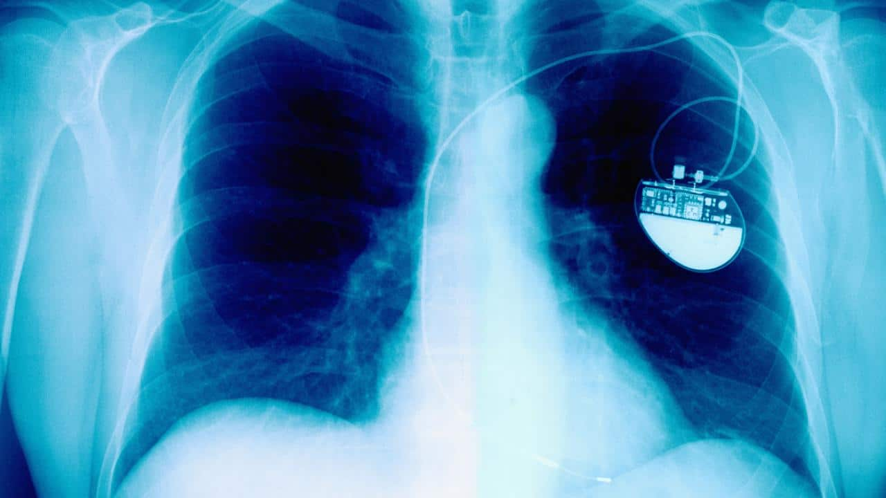 Why implantable medical devices are a big test for regulators